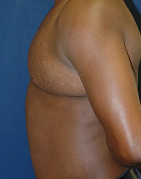 Masculinizing Surgery Gallery - Patient 4862067 - Image 3
