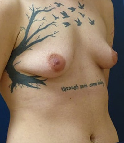 Masculanizing Surgery Gallery - Patient 4862068 - Image 1