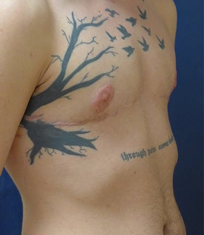 Masculanizing Surgery Gallery - Patient 4862068 - Image 2