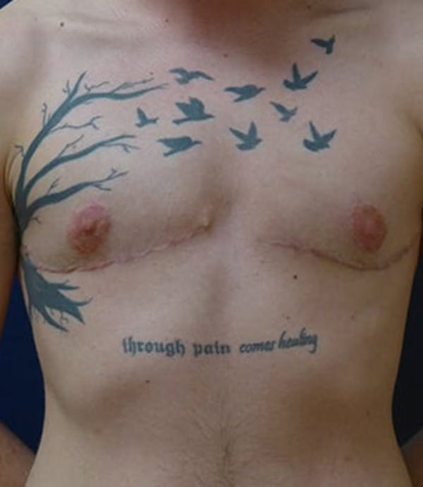 Masculinizing Surgery Gallery - Patient 4862068 - Image 4
