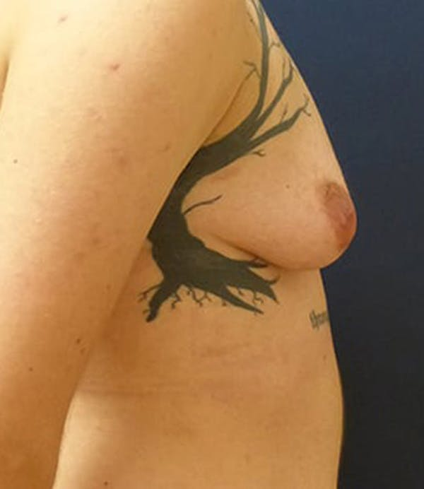 Masculinizing Surgery Gallery - Patient 4862068 - Image 5