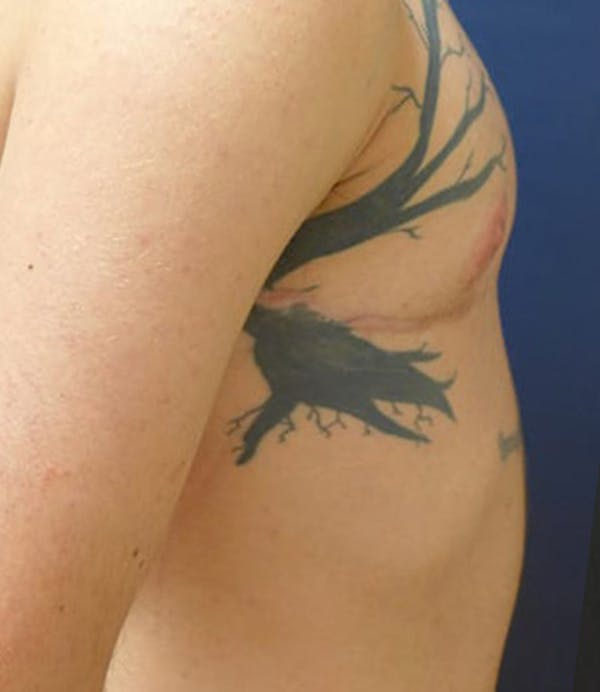 Masculinizing Surgery Gallery - Patient 4862068 - Image 6