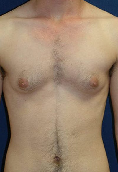 Masculinizing Surgery Gallery - Patient 4862069 - Image 1
