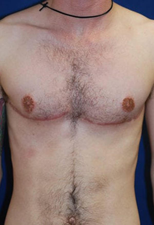 Masculinizing Surgery Gallery - Patient 4862069 - Image 2