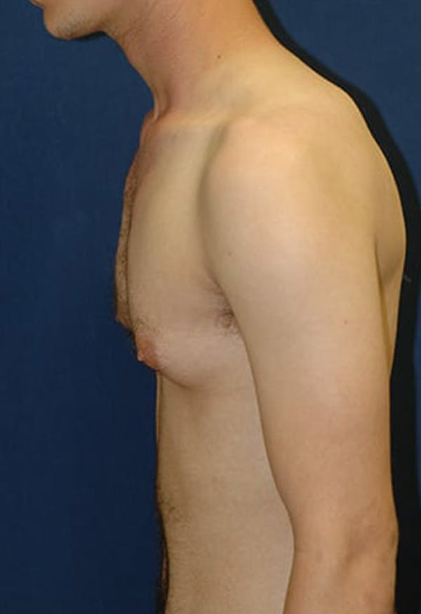 Masculinizing Surgery Gallery - Patient 4862069 - Image 3