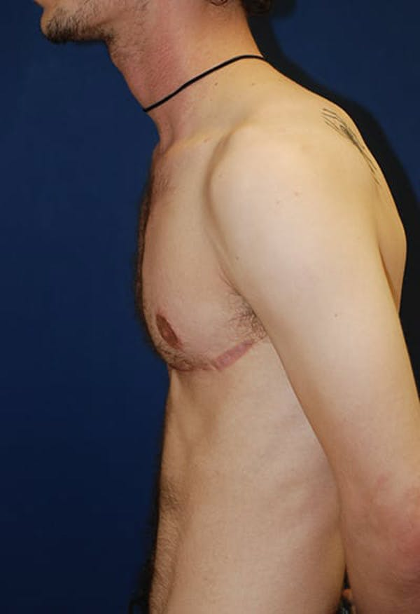 Masculinizing Surgery Gallery - Patient 4862069 - Image 4