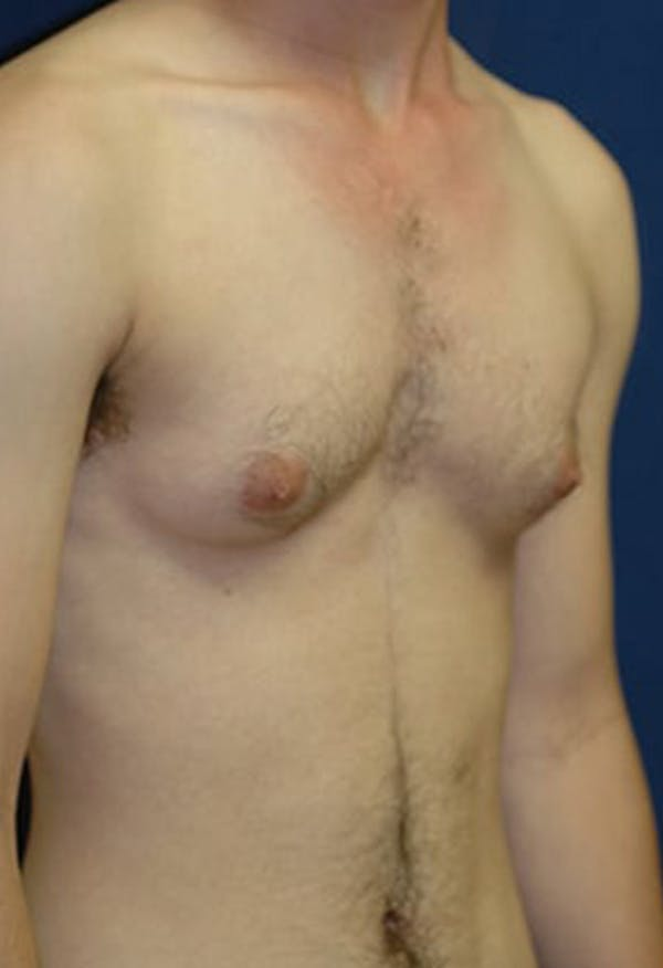 Masculinizing Surgery Gallery - Patient 4862069 - Image 5