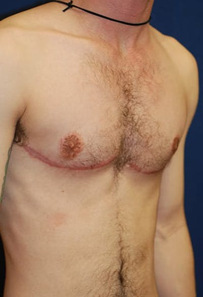 Masculinizing Surgery Gallery - Patient 4862069 - Image 6