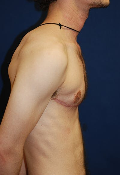 Masculinizing Surgery Gallery - Patient 4862069 - Image 8