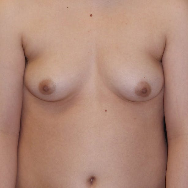 Masculanizing Surgery Gallery - Patient 4862070 - Image 1