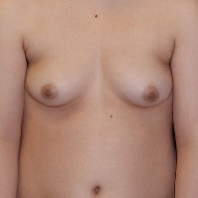 Masculinizing Surgery Gallery - Patient 4862070 - Image 1