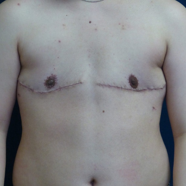Masculanizing Surgery Gallery - Patient 4862070 - Image 2
