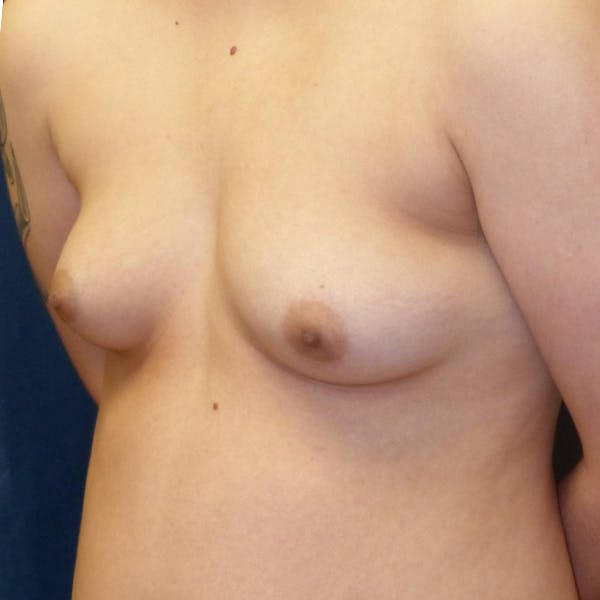 Masculinizing Surgery Gallery - Patient 4862070 - Image 3