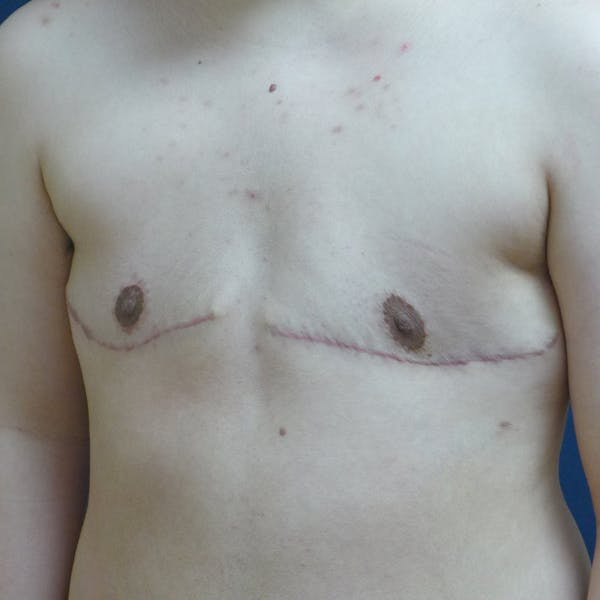 Masculinizing Surgery Gallery - Patient 4862070 - Image 4