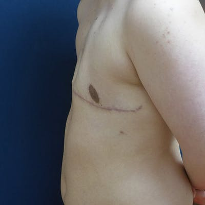 Masculinizing Surgery Gallery - Patient 4862070 - Image 6