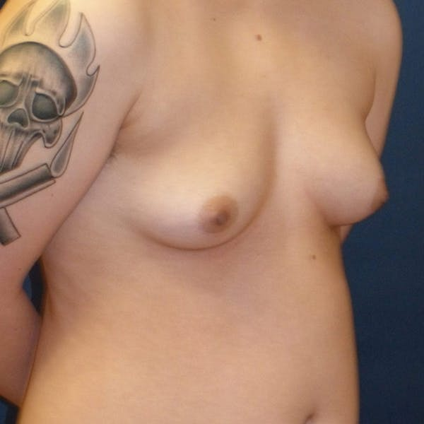 Masculinizing Surgery Gallery - Patient 4862070 - Image 7