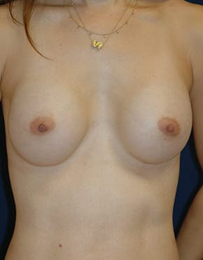 Breast Reconstruction Results Houston