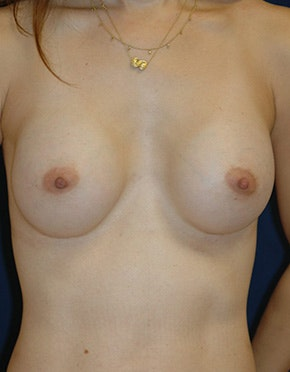 Breast Reconstruction Gallery - Patient 4861996 - Image 2