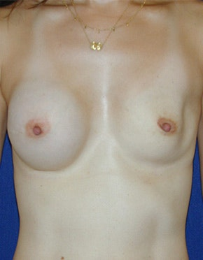 Breast Reconstruction Gallery - Patient 4861996 - Image 1