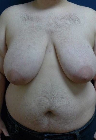 Masculanizing Surgery Gallery - Patient 4862071 - Image 1