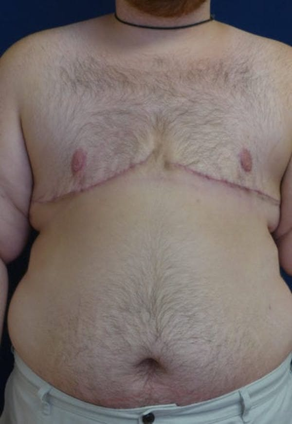 Masculinizing Surgery Gallery - Patient 4862071 - Image 2