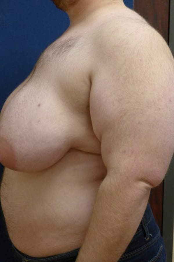 Masculinizing Surgery Gallery - Patient 4862071 - Image 3