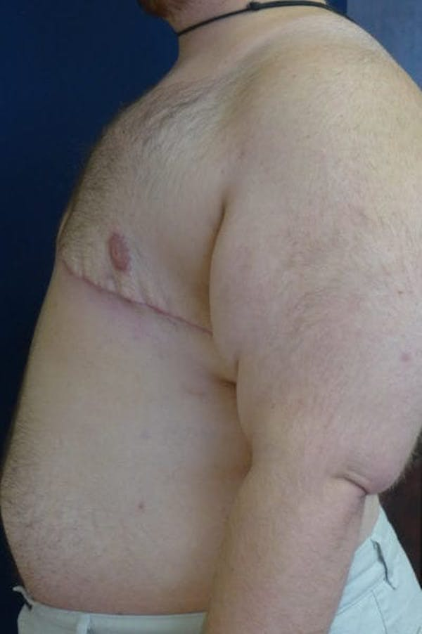 Masculinizing Surgery Gallery - Patient 4862071 - Image 4