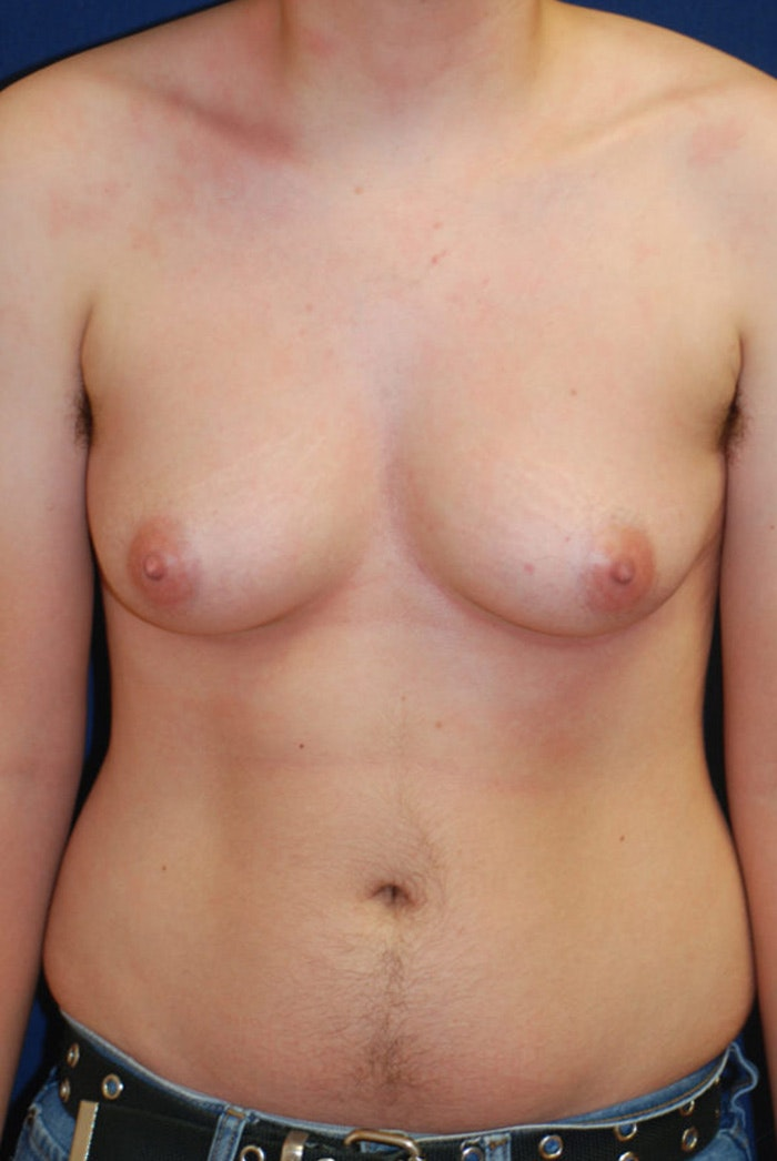 Masculanizing Surgery Gallery - Patient 4862072 - Image 1