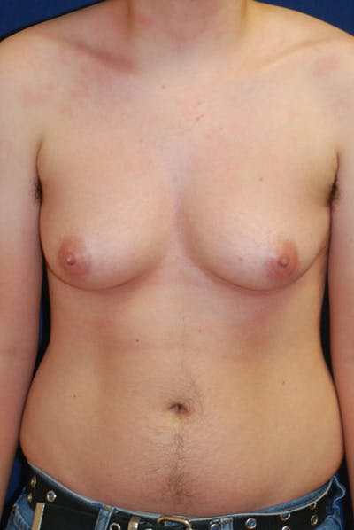 Masculinizing Surgery Gallery - Patient 4862072 - Image 1