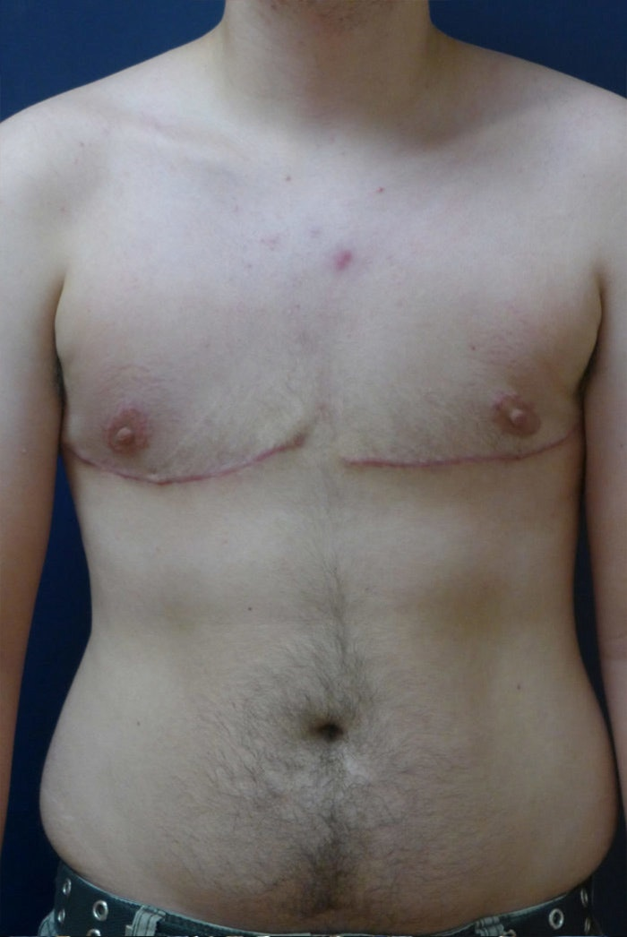 Masculanizing Surgery Gallery - Patient 4862072 - Image 2