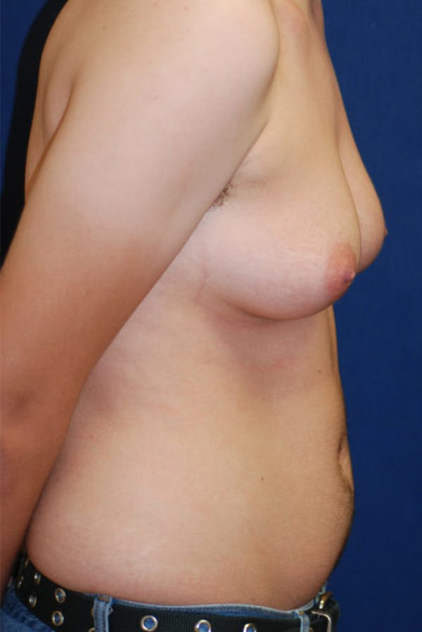 Masculinizing Surgery Gallery - Patient 4862072 - Image 3
