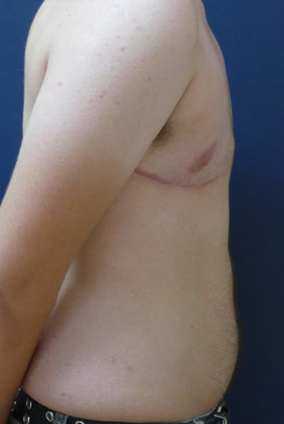 Masculinizing Surgery Gallery - Patient 4862072 - Image 4