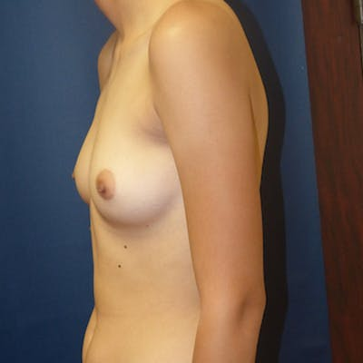 Masculinizing Surgery Gallery - Patient 4862073 - Image 1