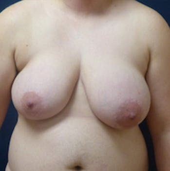 Masculanizing Surgery Gallery - Patient 4862075 - Image 1