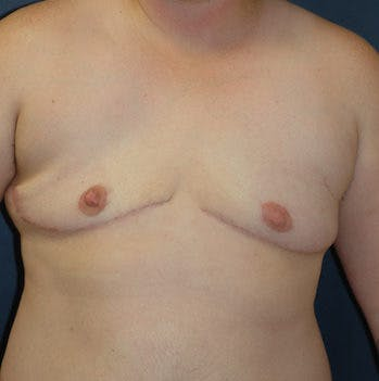 Masculanizing Surgery Gallery - Patient 4862075 - Image 2