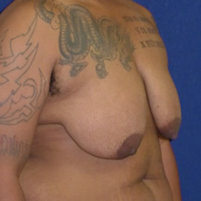 Masculinizing Surgery Gallery - Patient 4862076 - Image 1