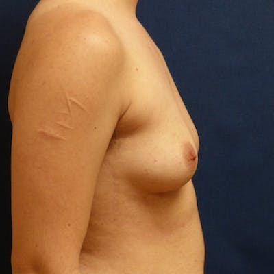 Masculinizing Surgery Gallery - Patient 4862077 - Image 1