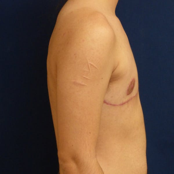 Masculinizing Surgery Gallery - Patient 4862077 - Image 2