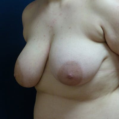 Masculinizing Surgery Gallery - Patient 4862078 - Image 1