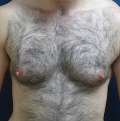 Masculinizing Surgery Gallery - Patient 4862079 - Image 1