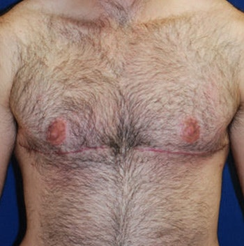 Masculanizing Surgery Gallery - Patient 4862079 - Image 2