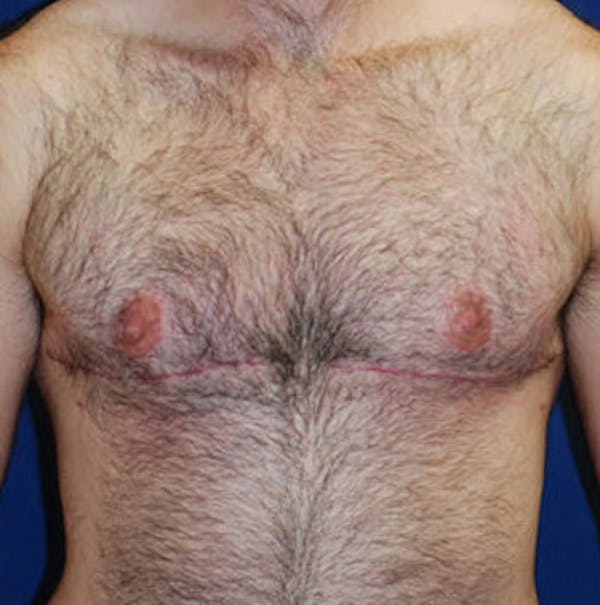 Masculinizing Surgery Gallery - Patient 4862079 - Image 2