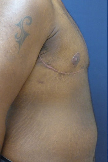 Masculanizing Surgery Gallery - Patient 4862080 - Image 2