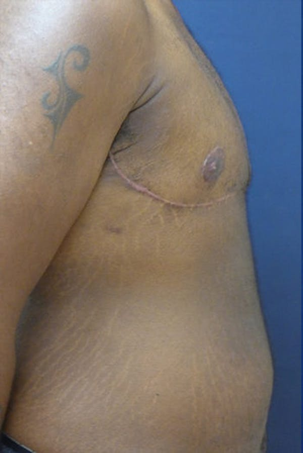 Masculinizing Surgery Gallery - Patient 4862080 - Image 2