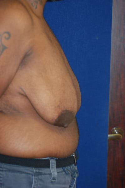 Masculinizing Surgery Gallery - Patient 4862080 - Image 1
