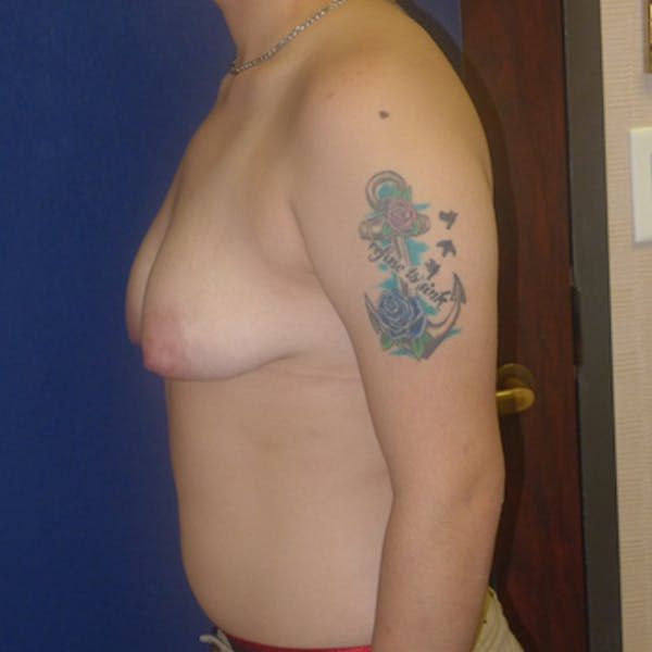 Masculinizing Surgery Gallery - Patient 4862083 - Image 1