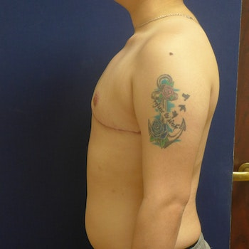 Masculanizing Surgery Gallery - Patient 4862083 - Image 2