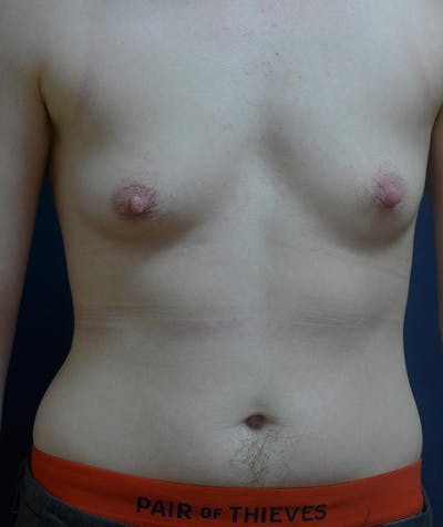Masculinizing Surgery Gallery - Patient 4862084 - Image 1