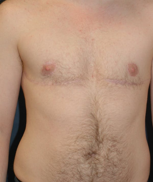 Masculinizing Surgery Gallery - Patient 4862084 - Image 2