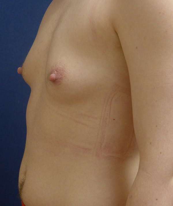 Masculinizing Surgery Gallery - Patient 4862084 - Image 3